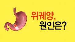 [한컷] 심혈관·관절염 막으려다 위궤양 증가