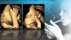 """[한컷뉴스] """"엄마 숨 막혀요"""" 흡연 산모의 초음파 사진"""