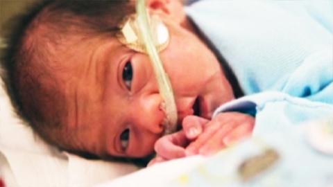 뇌사 상태 母, 54일 만에 '아기 천사'를 낳다