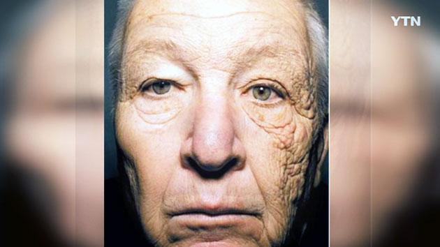 한쪽 얼굴만 늙어버린 남자…원인은 '자외선'