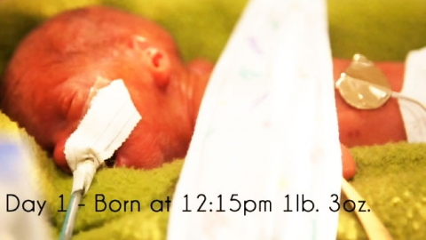 0.5kg 아기…80일간의 기록
