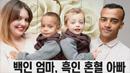 100만분의 1 확률로 태어난 '흑백 쌍둥이'