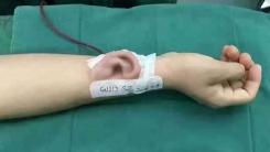 현대 의학의 놀라움...팔뚝에 귀 배양해 이식 수술