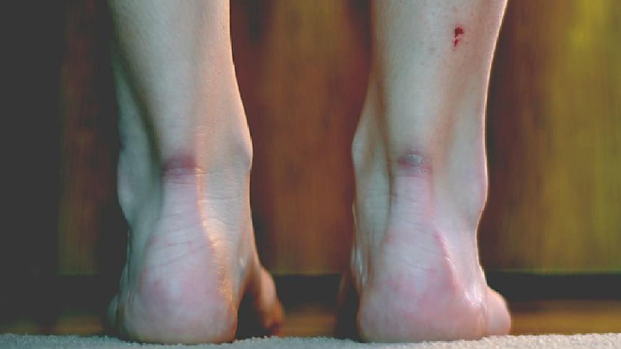 상처의 '흉터', 완전히 지울 수 있는 방법?