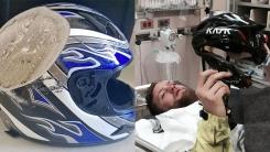 오토바이 탈 때 반드시 헬멧을 써야하는 이유