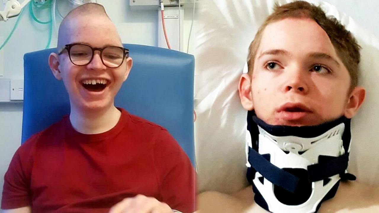 16세 소년, 만취한 운전자에 뺑소니 당해 머리 함몰