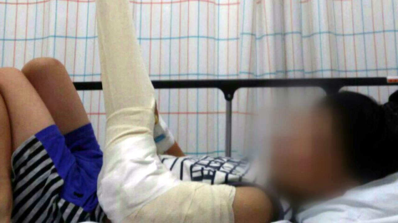 5살 아이 팔 부러뜨리고 숨긴 보육교사 영장 신청
