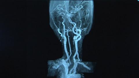 주사 한번으로 MRI·CT 적용 '나노 조영제' 개발