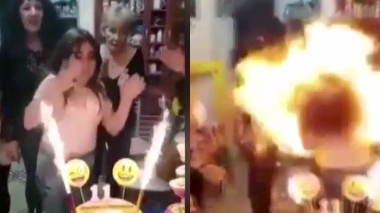 '이 물건' 때문에 케이크 촛불 불다 머리 불붙은 소녀