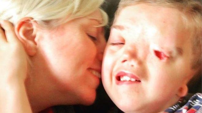 인스타그램, 장애 아동 사진 일방적으로 삭제해 논란