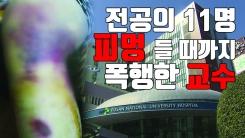 """[자막뉴스] """"피멍 들 때까지"""" 부산대 병원 교수, 전공의 상습 폭행"""