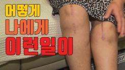[자막뉴스] 무릎관절 수술했다가...영구 장애 진단