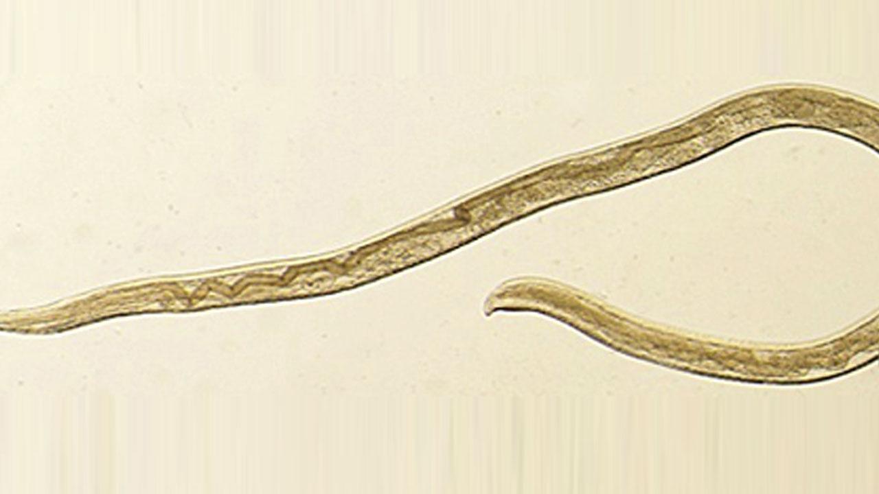 美 여성 눈에서 소 기생충 14마리 발견...인간 감염 첫 사례