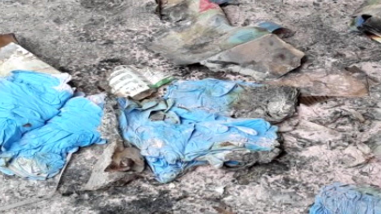 택배 상자 폭발 근로자 2명 화상