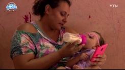 """브라질 소두증 아기 엄마의 눈물…""""남들 시선이 두려워요"""""""