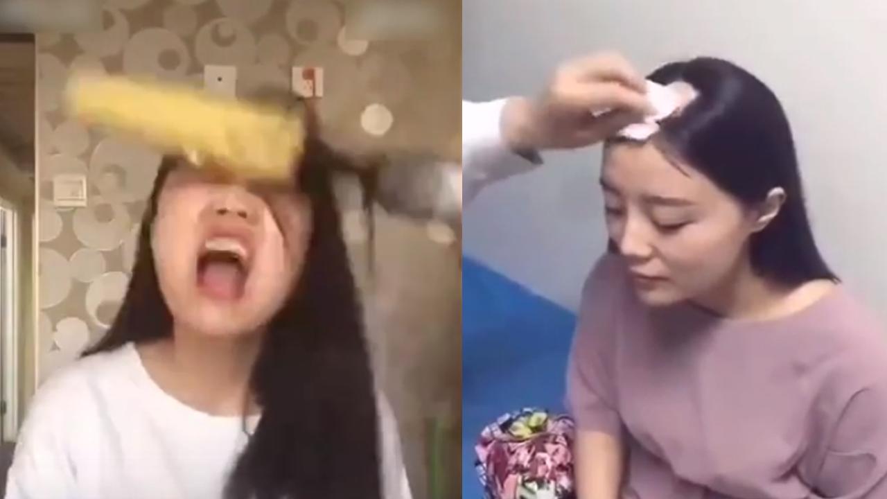 드릴로 옥수수 먹다 머리카락 몽땅 뽑힌 여성 '치료 중'