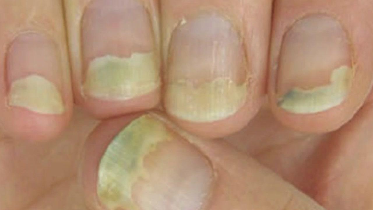 손발톱 변색·변형은 '무좀'?...섣부른 판단 안 돼요