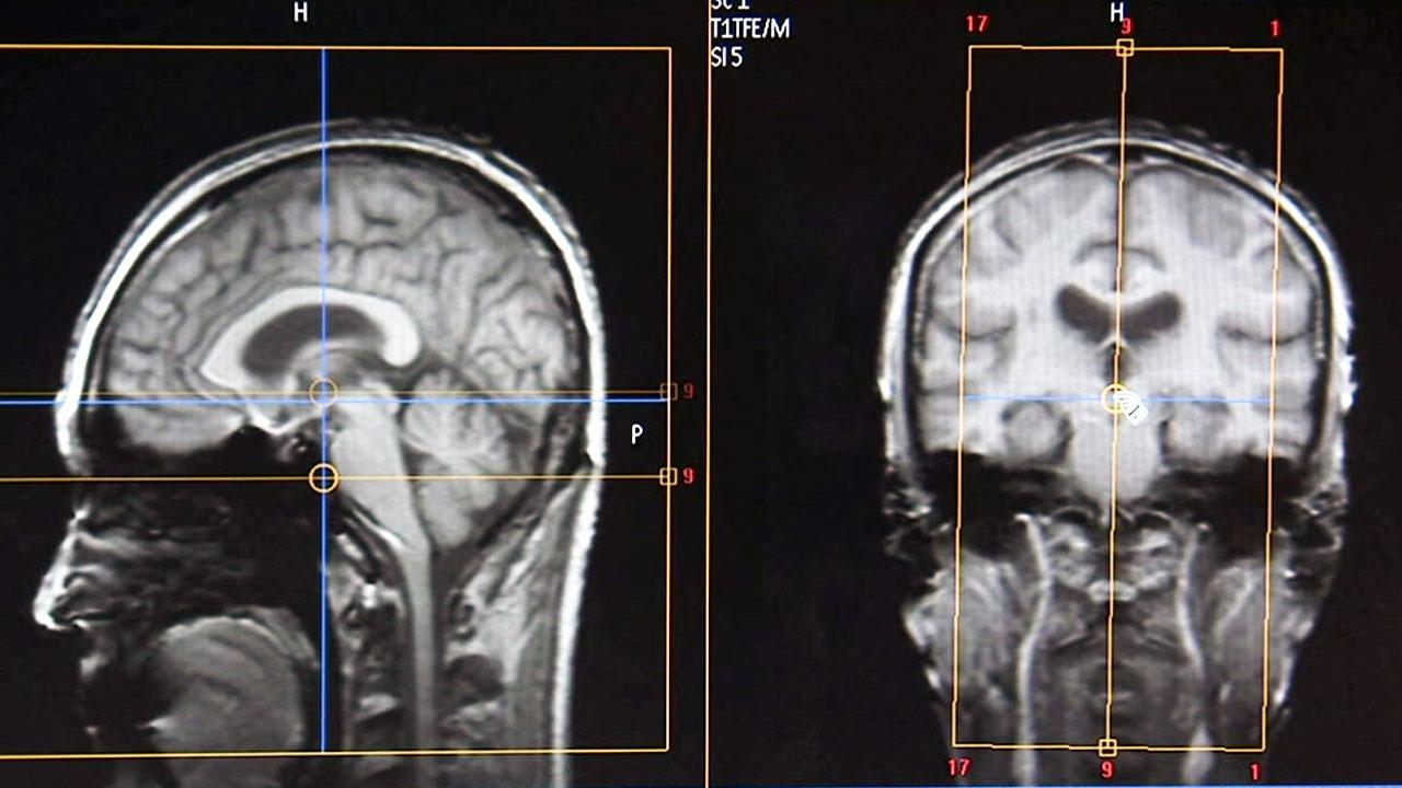 국내 연구진, 악성뇌종양 표적유전자 세계 첫 규명...치료 길 열어