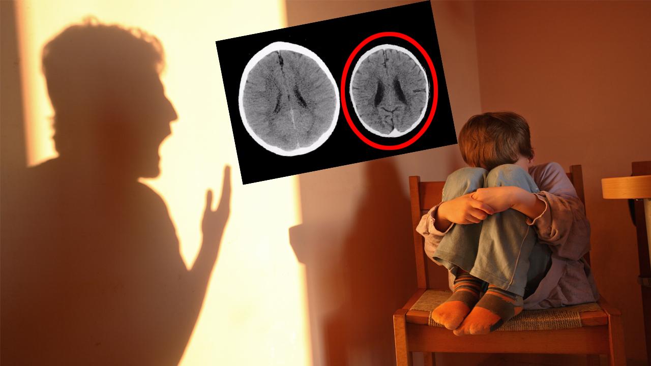 학대받은 아이와 사랑 받은 아이, 뇌 구조에 큰 차이