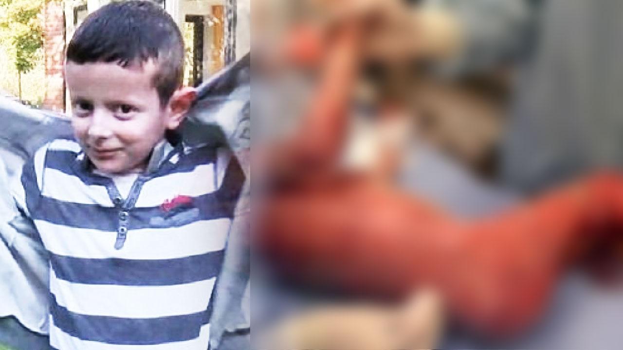 희소 피부병 앓는 7세 소년, '줄기세포'로 치료
