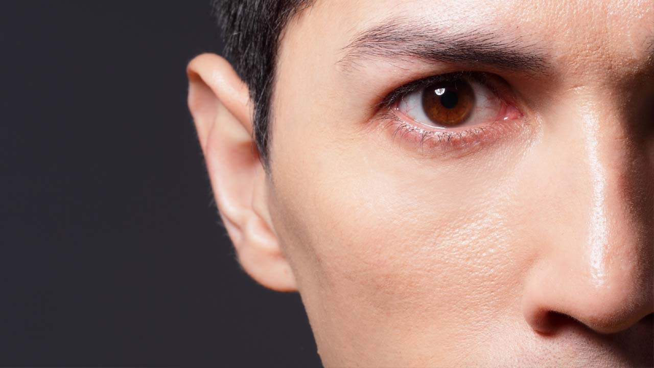 건조한 겨울, 눈 건강에 좋은 영양소 3가지는?