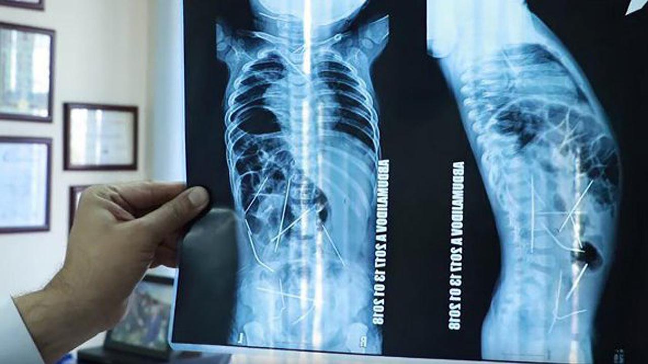 '범인은 누구?' 11개월 영아 몸에서 발견된 16개의 바늘