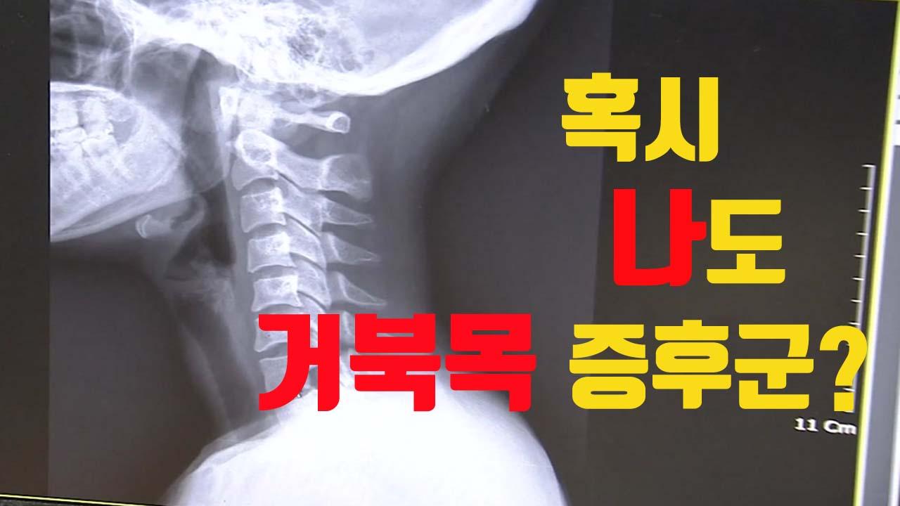[자막뉴스] '일자목 증후군' 환자 5년간 30만 명 증가