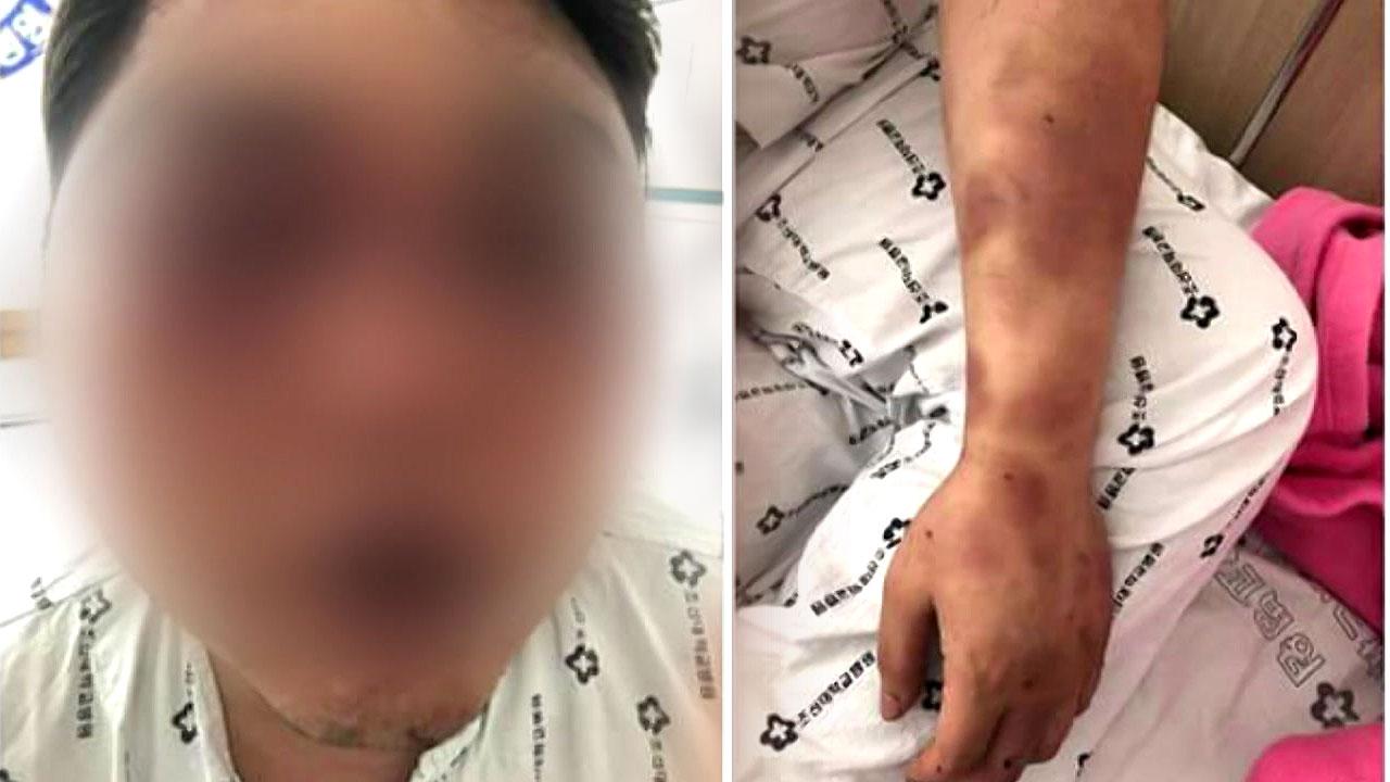 [취재N팩트] 택시 새치기 시비...집단 구타당한 30대 실명위기