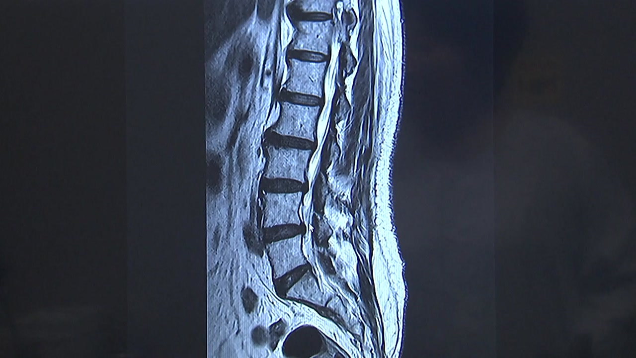 장노년층 허리·다리 통증, 노화 아닌 척추 질환