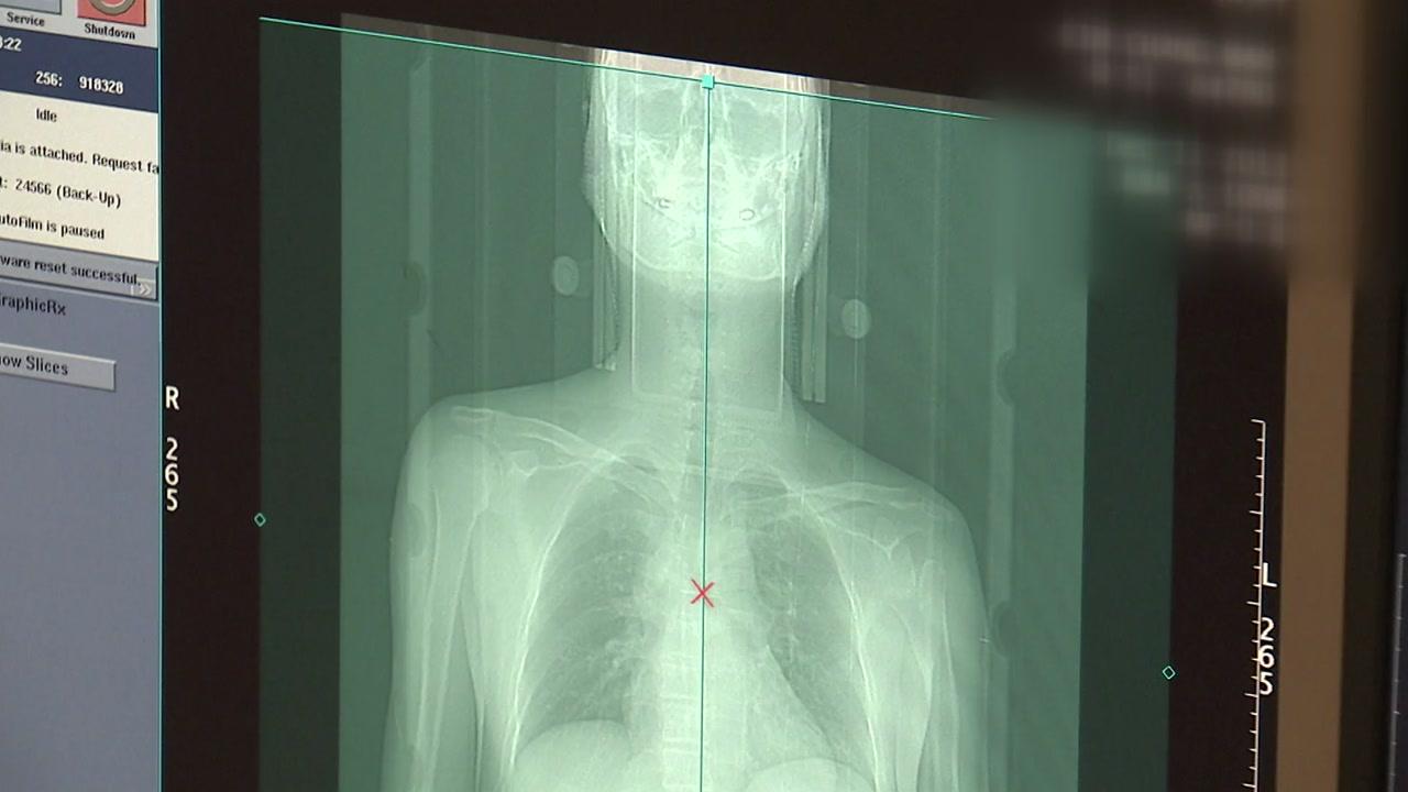 암세포 죽이고 부작용 막고...식도암 환자 돕는 새 장비