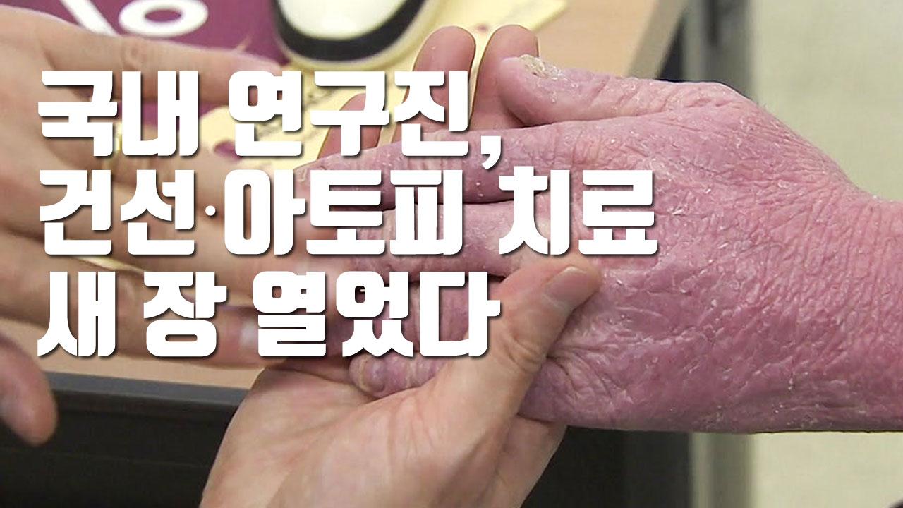 [자막뉴스] 국내 연구진, 건선·아토피 치료 새 장 열었다