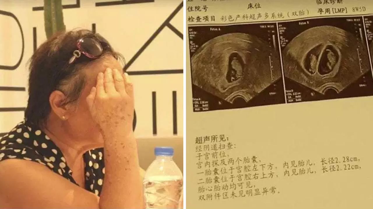 쌍둥이 임신한 67세 할머니...中 병원은 '진료 거부'