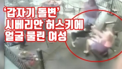 [자막뉴스] '갑자기 돌변' 시베리안 허스키에 얼굴 물린 여성