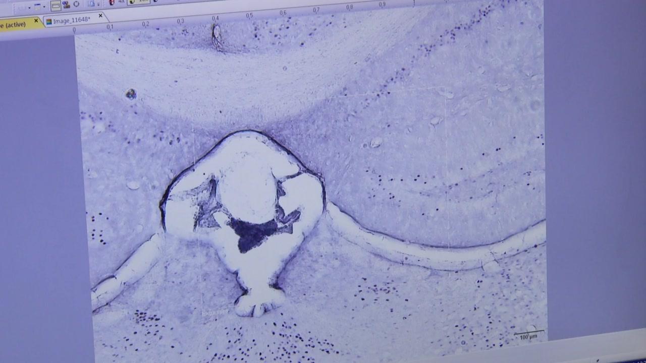 """침 맞으면 뇌 단백질 변한다...""""우울·불안증 치료 효과"""""""