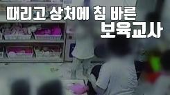 [자막뉴스] 보육교사가 아이 얼굴 때리고 상처에 침 발라