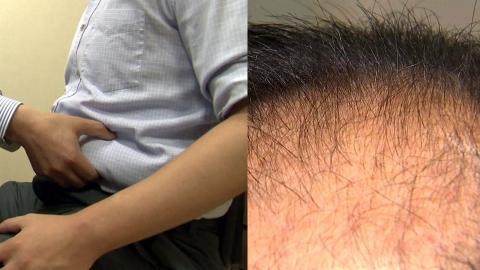 뱃살의 재발견…지방 줄기세포로 '탈모' 치료한다