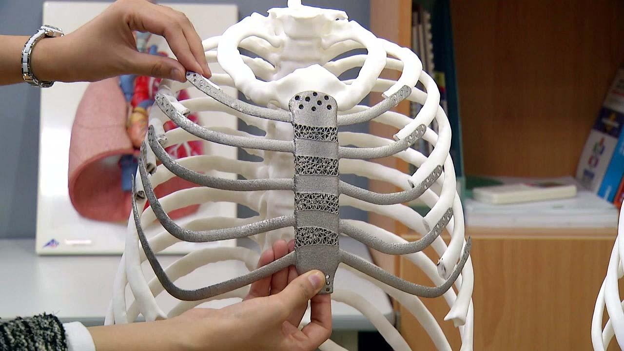 3D 프린터로 만든 인공 가슴뼈...국내 첫 이식 성공