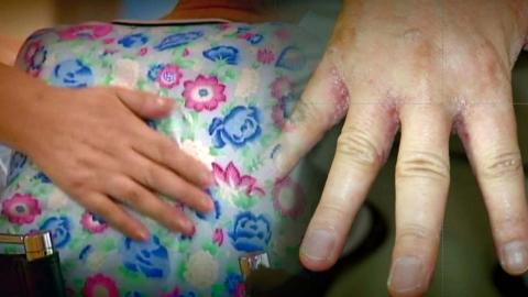 [단독] 요양보호사, '피부 전염' 옴에 무방비 노출