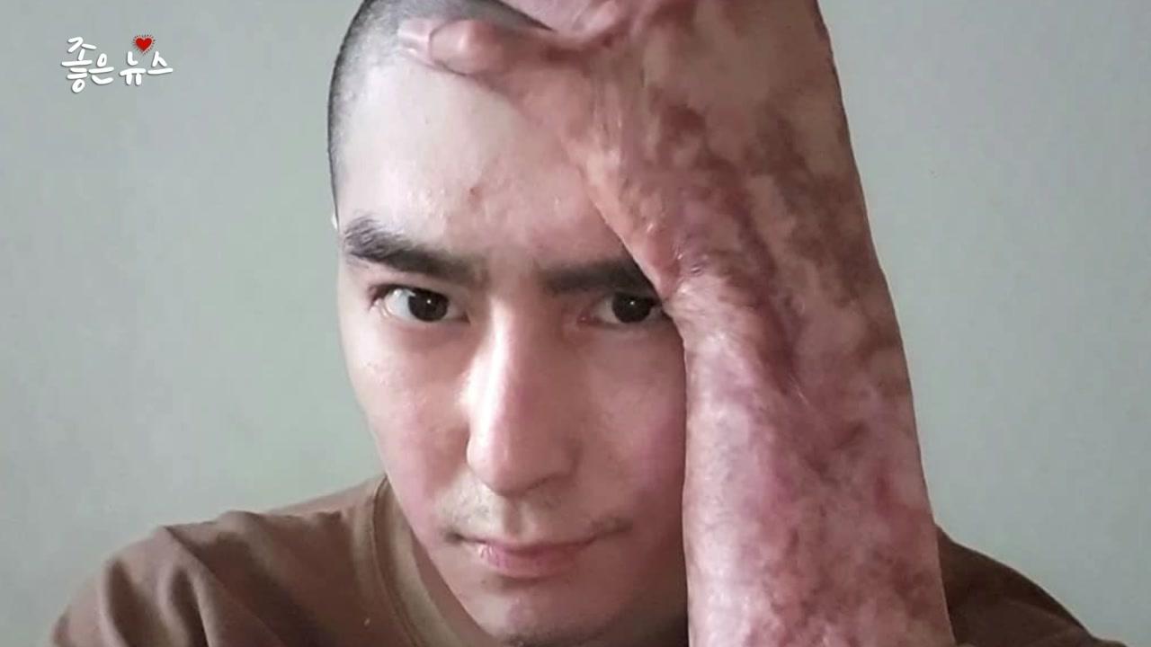 """[좋은뉴스] """"흉터는 상처 극복한 증거""""...근황 전한 이찬호 병장"""
