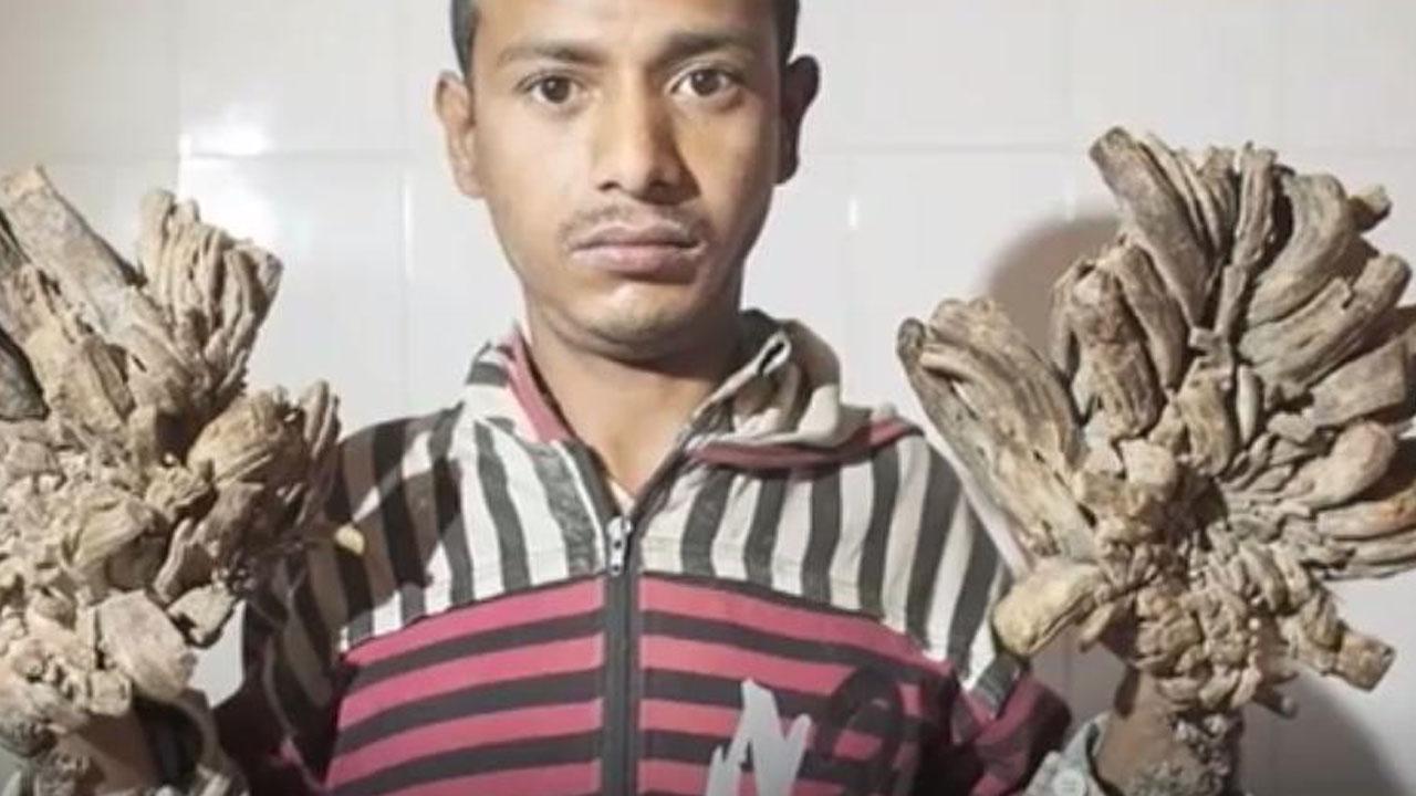 손발 자라는 '나무인간병' 앓는 남성, 증세 악화로 입원