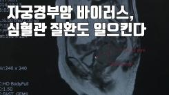 [자막뉴스] 자궁경부암 바이러스, 심혈관 질환도 일으킨다