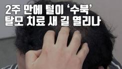 [자막뉴스] 2주 만에 털이 '수북'...탈모 치료 새 길 열리나