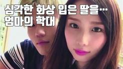 [자막뉴스] 심각한 화상 입은 딸 랩으로 둘둘...도박장 놀러 간 엄마