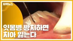 [자막뉴스] 잇몸병 방치하면 치아 잃는다...정기적 검진 중요