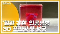 [자막뉴스] '혈관 갖춘' 인공심장 3D 프린팅 첫 성공