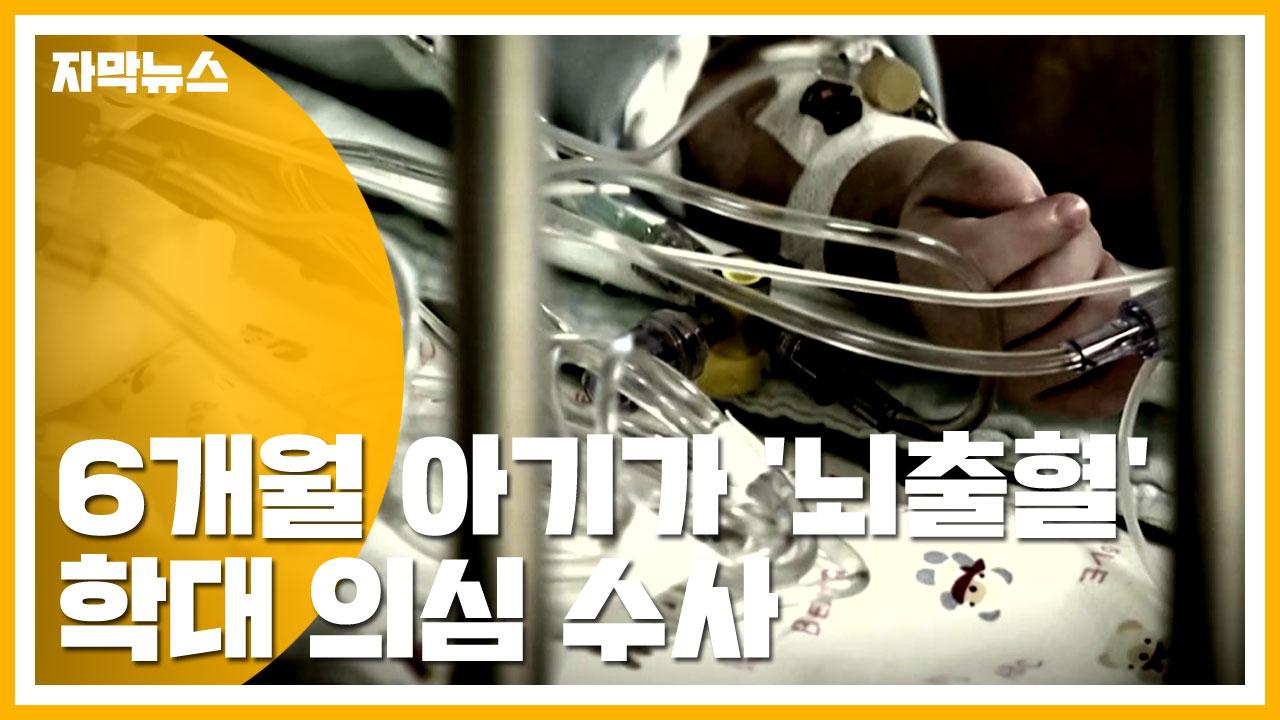 [자막뉴스] 생후 6개월 아기가 '뇌출혈'...학대 의심 수사