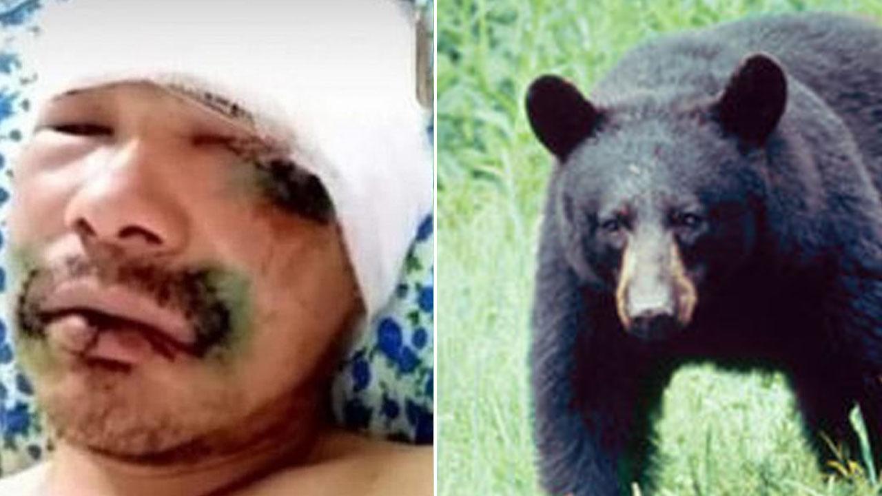 숲에서 곰 만난 남성, '곰 혀' 물어 뜯어 목숨 건져