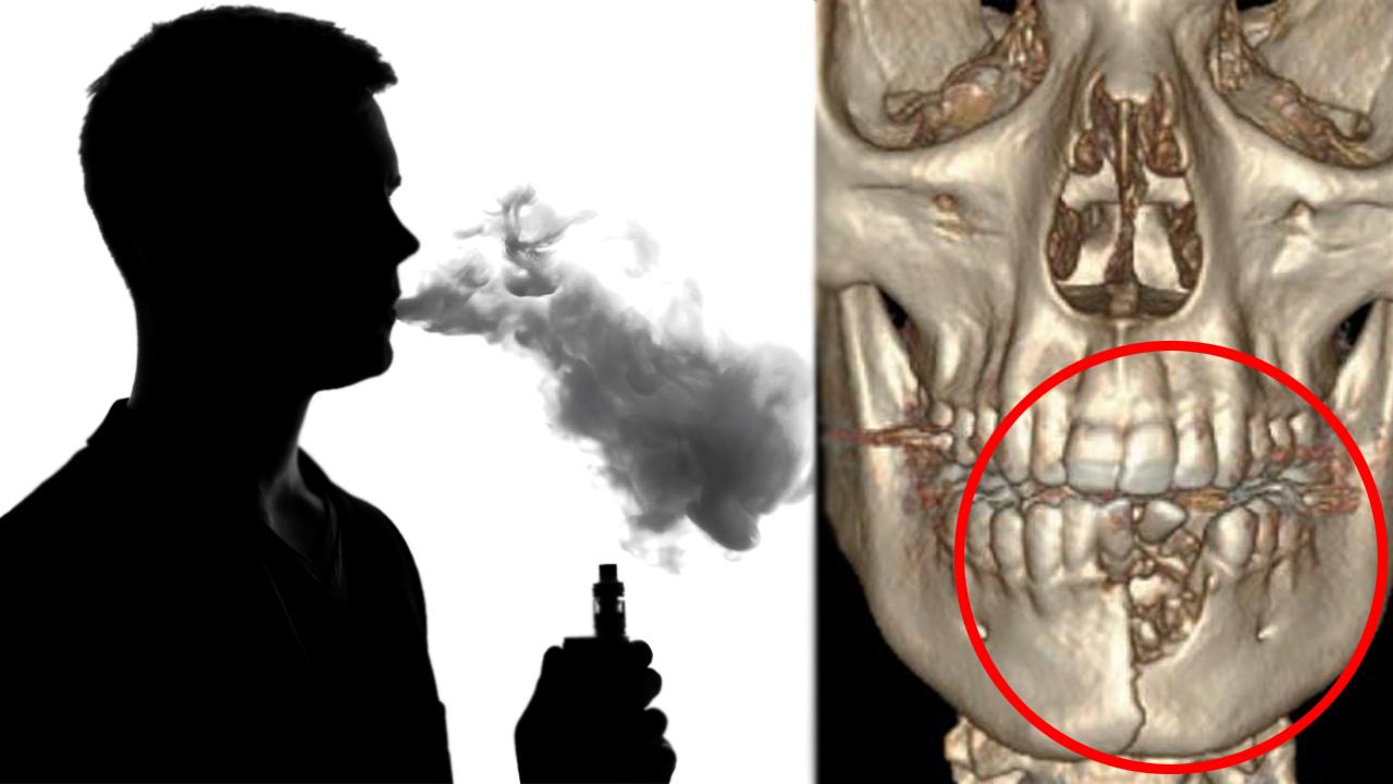 美 17세 소년 전자담배 폭발... 턱 산산조각 나는 중상 입어