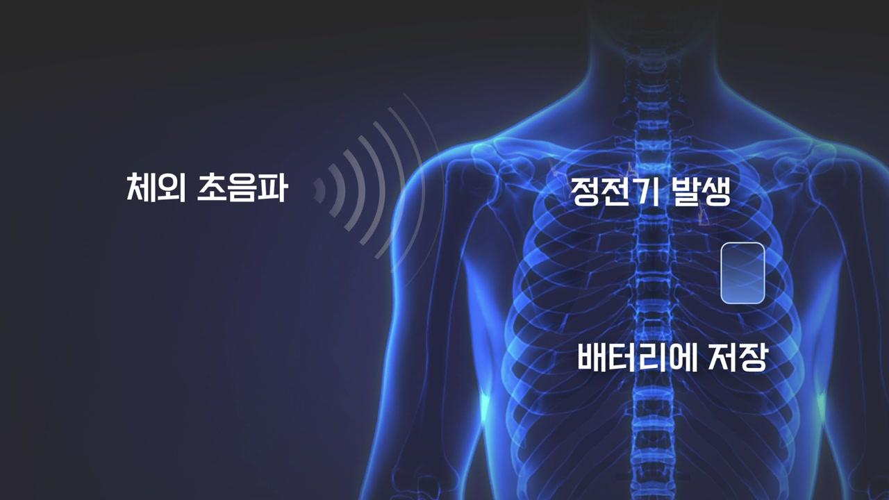 내 몸이 발전기...초음파로 정전기 일으켜 배터리 충전