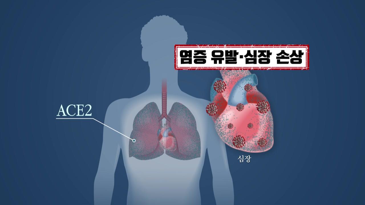 코로나19, 고혈압·심혈관질환 만나면 최악...각별한 주의 필요